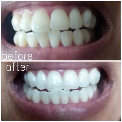 Equate Ultra White Teeth Whitening Strips 12 Treatments Compare To Crest 3d Whitestrips Vivid White Walmart Com Walmart Com