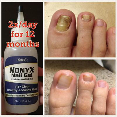 NonyX Nail Gel Review - Does It Really Work?   Review Critic