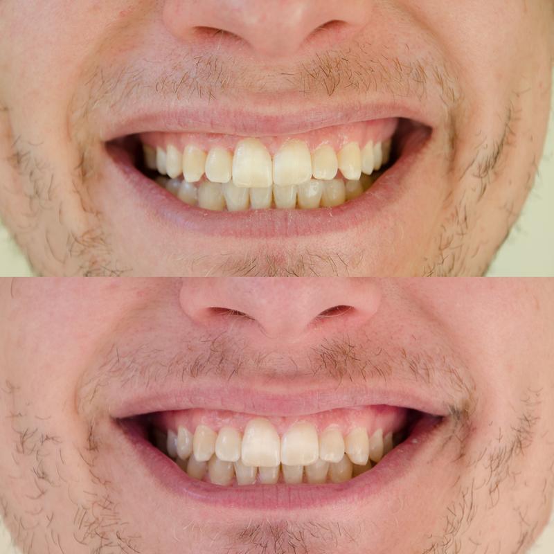 Hello Activated Charcoal Hemp Fluoride Free Toothpaste Vegan